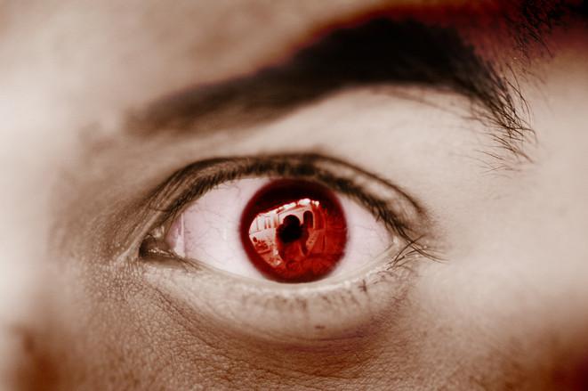 Olhos vermelhos em fotos
